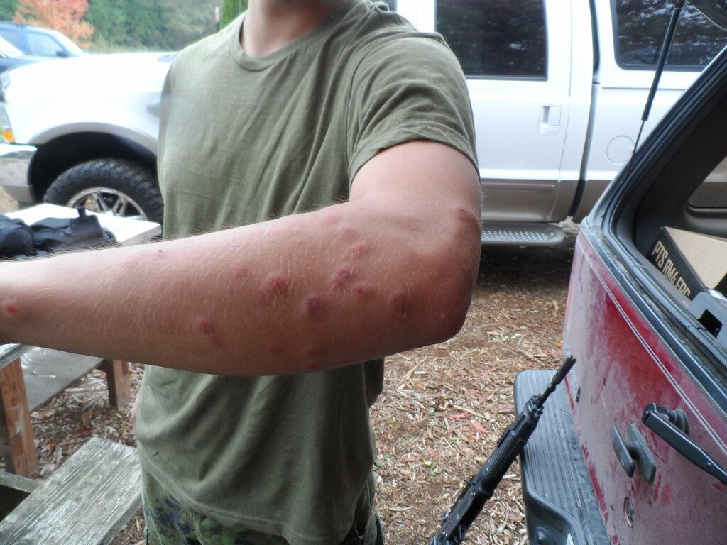Airsoft BBs can leave some pretty nasty welts behind!